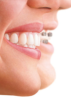 About Invisalign Treatment
