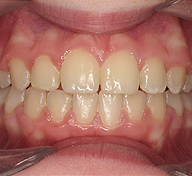 Prominent Teeth  After