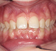 Prominent Teeth Before