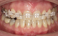 Clear Ceramic Fixed Braces