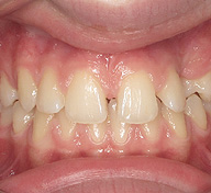 Impacted Teeth Before